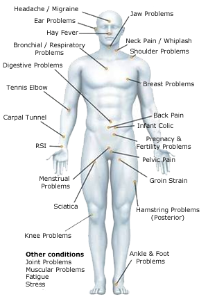little wren therapy man tattoo pain chart